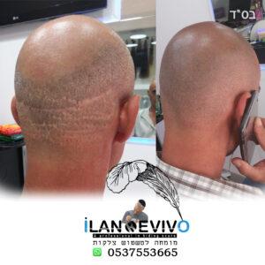 תיקון צלקות השתלת שיער