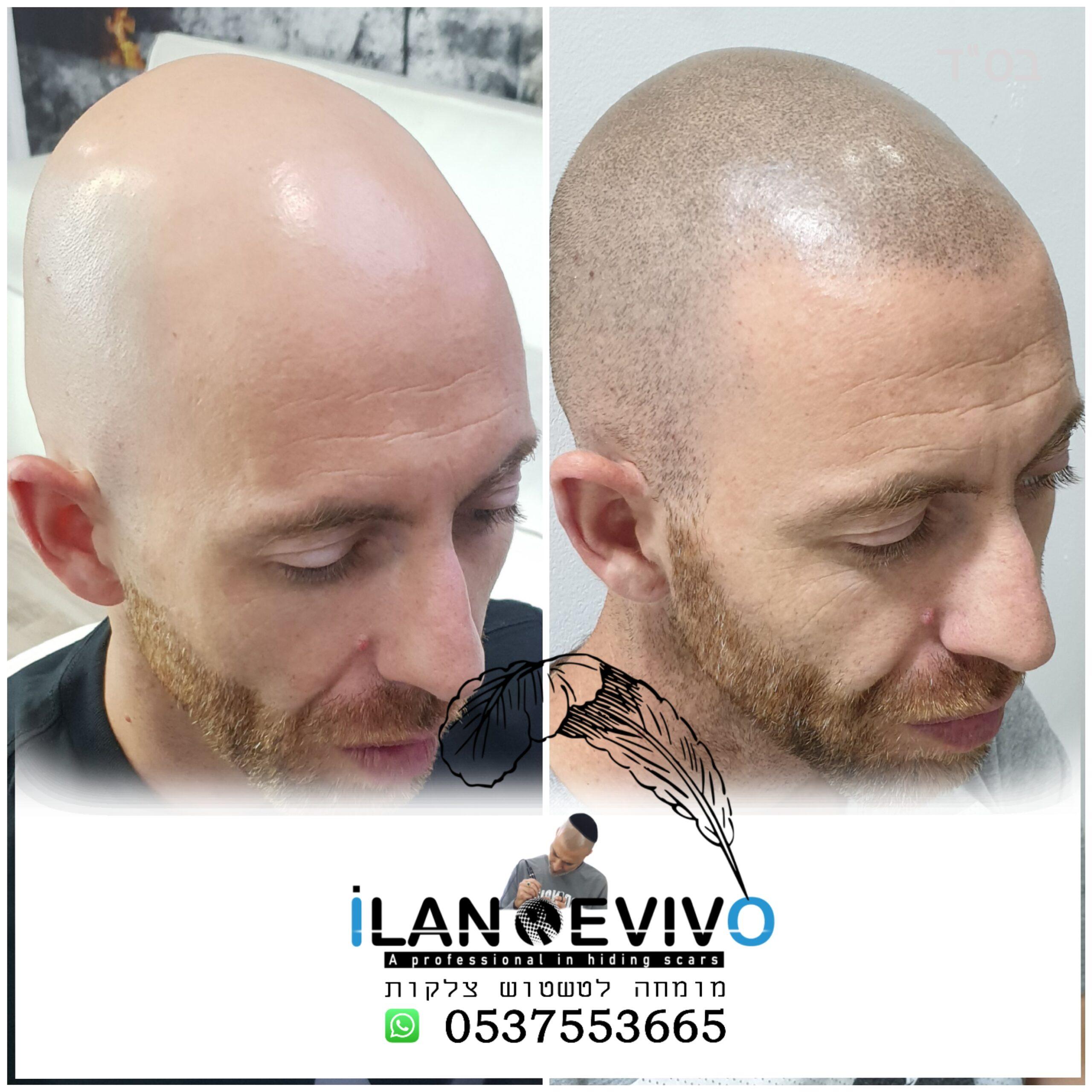 הדמיית שיער טיפול 2