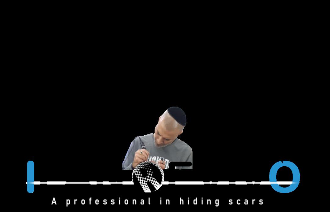 צלקת שיער { Hair scar }