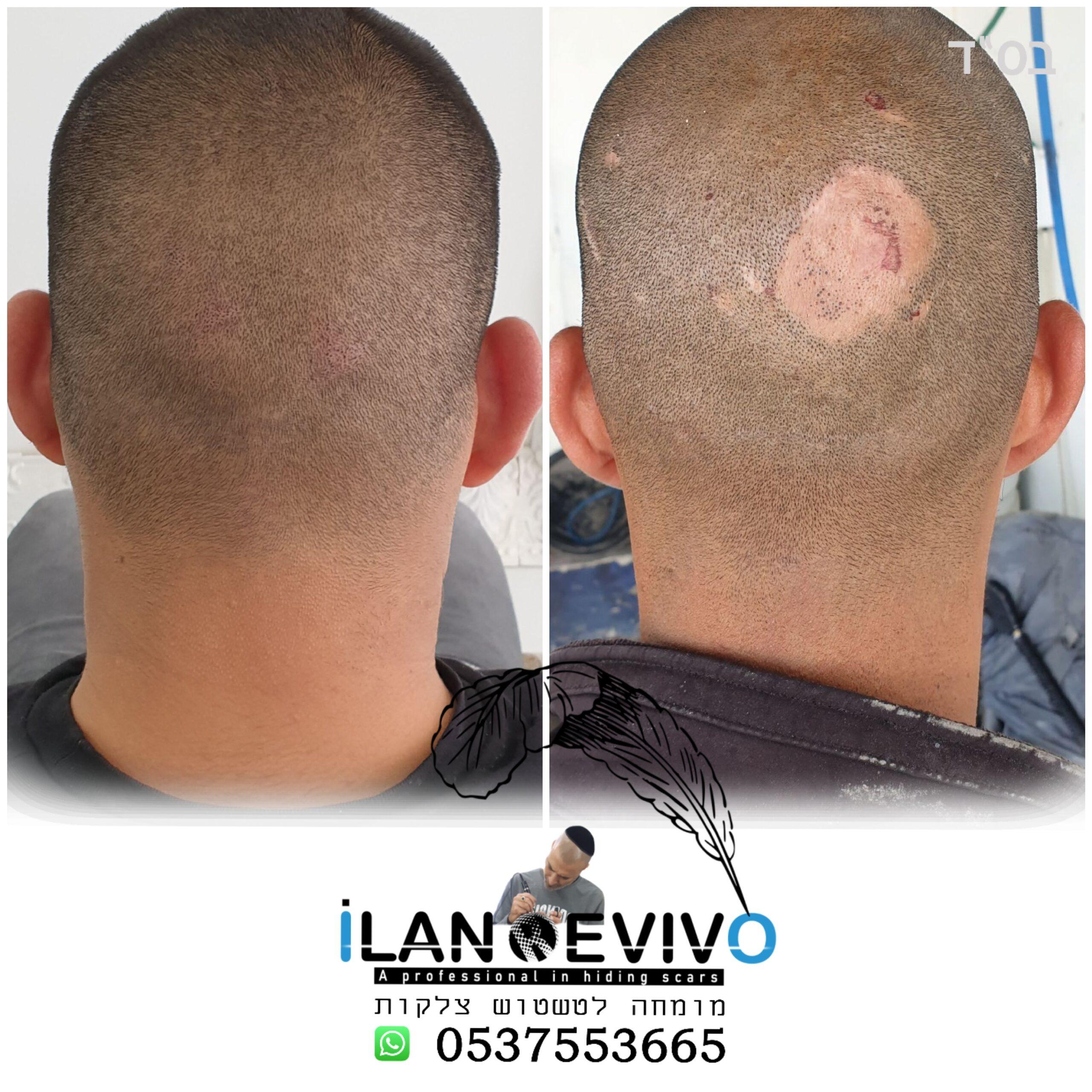 ראש צלקת - מומחה לטיפול בצלקות בקרקפת ובראש. תיקון צלקות של השתלות שיער, ציפוי צלקות במיקרופיגמנטציה, שיקום צלקות לפני ואחרי - הלוחש לצלקות
