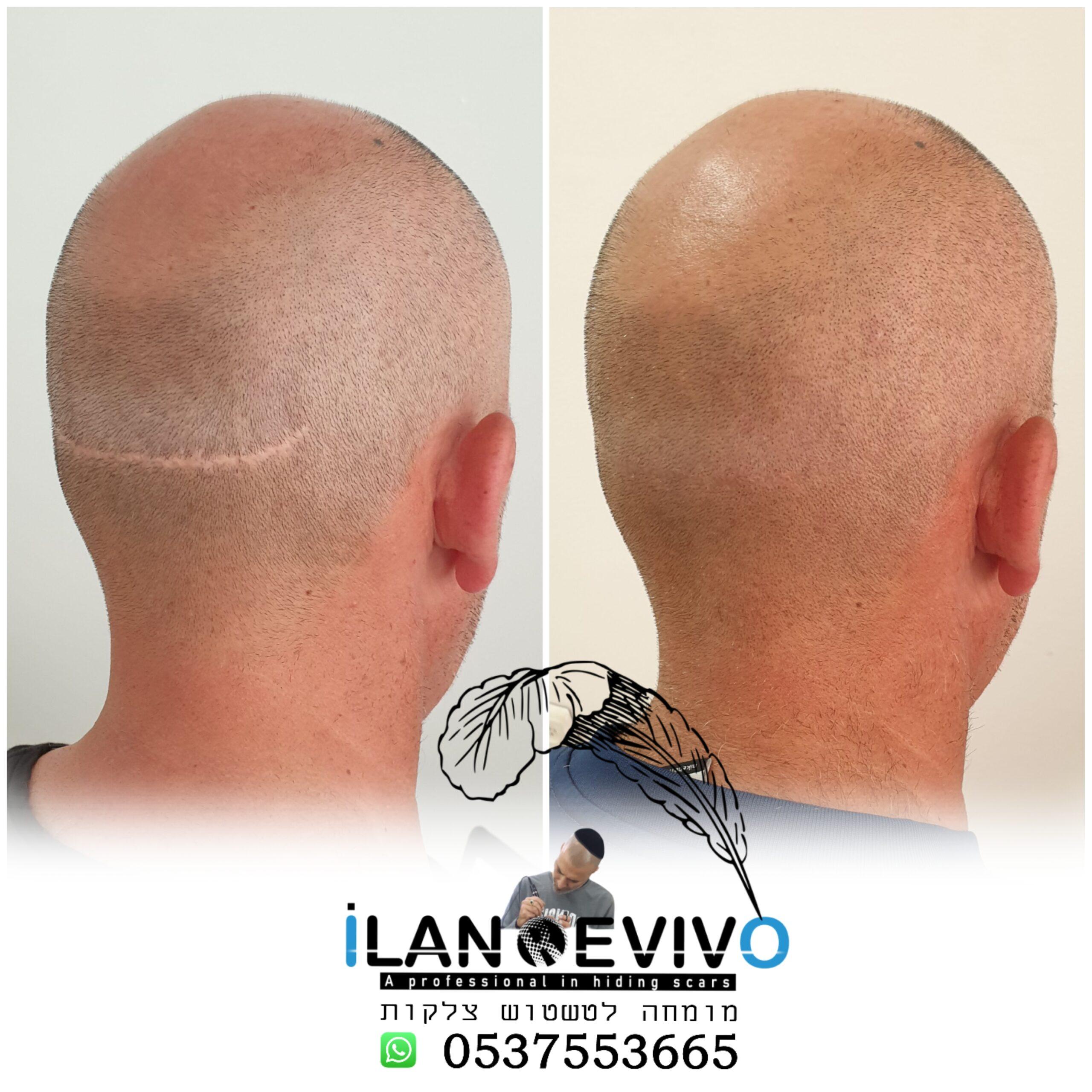 איפור מושלם לצלקת השתלת שיער