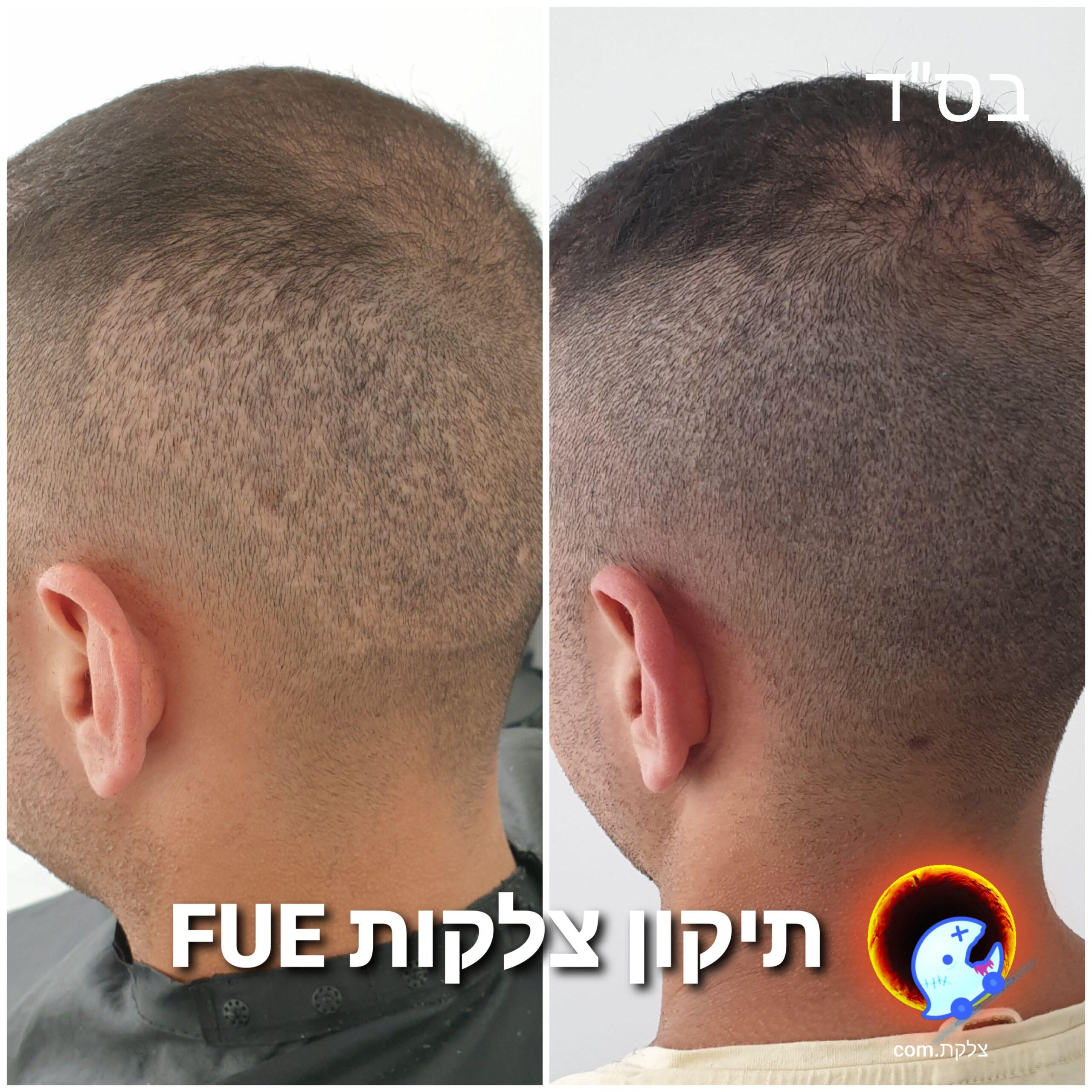 תיקון צלקות שיער