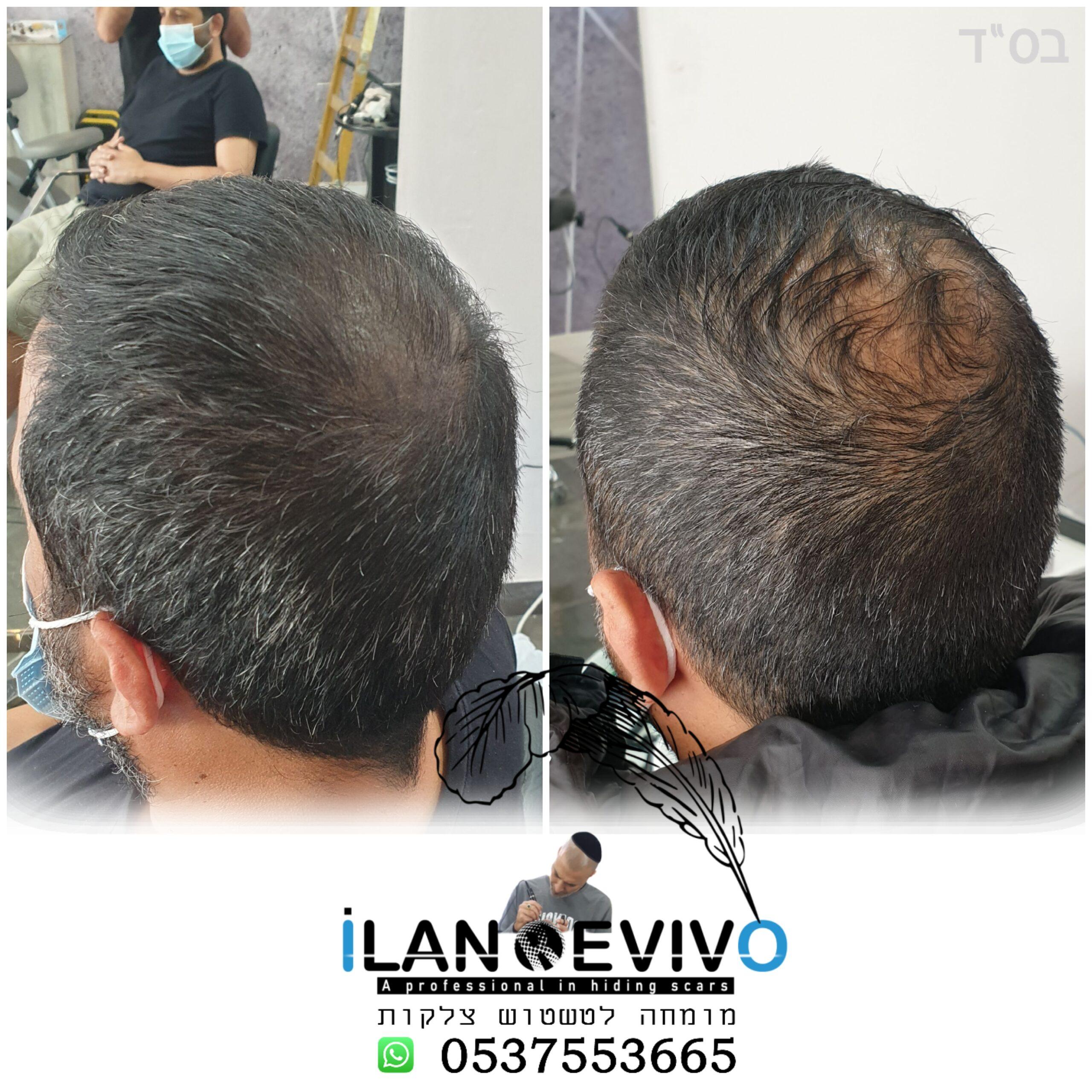 הדמיית שיער טיפול ראשון