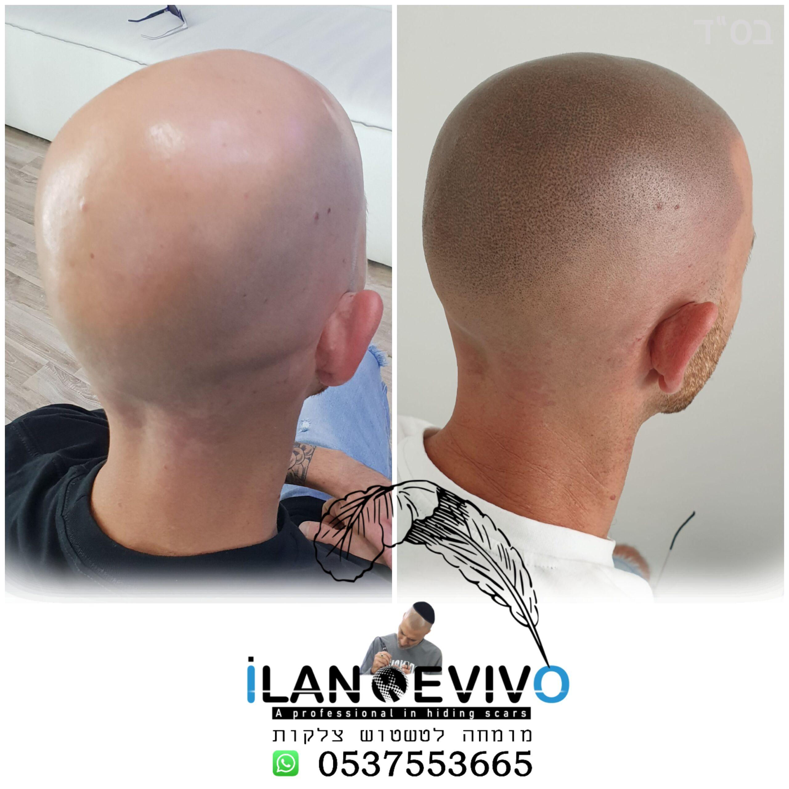 הדמיית שיער לגברים - מיקרופיגמנטציה לשיער