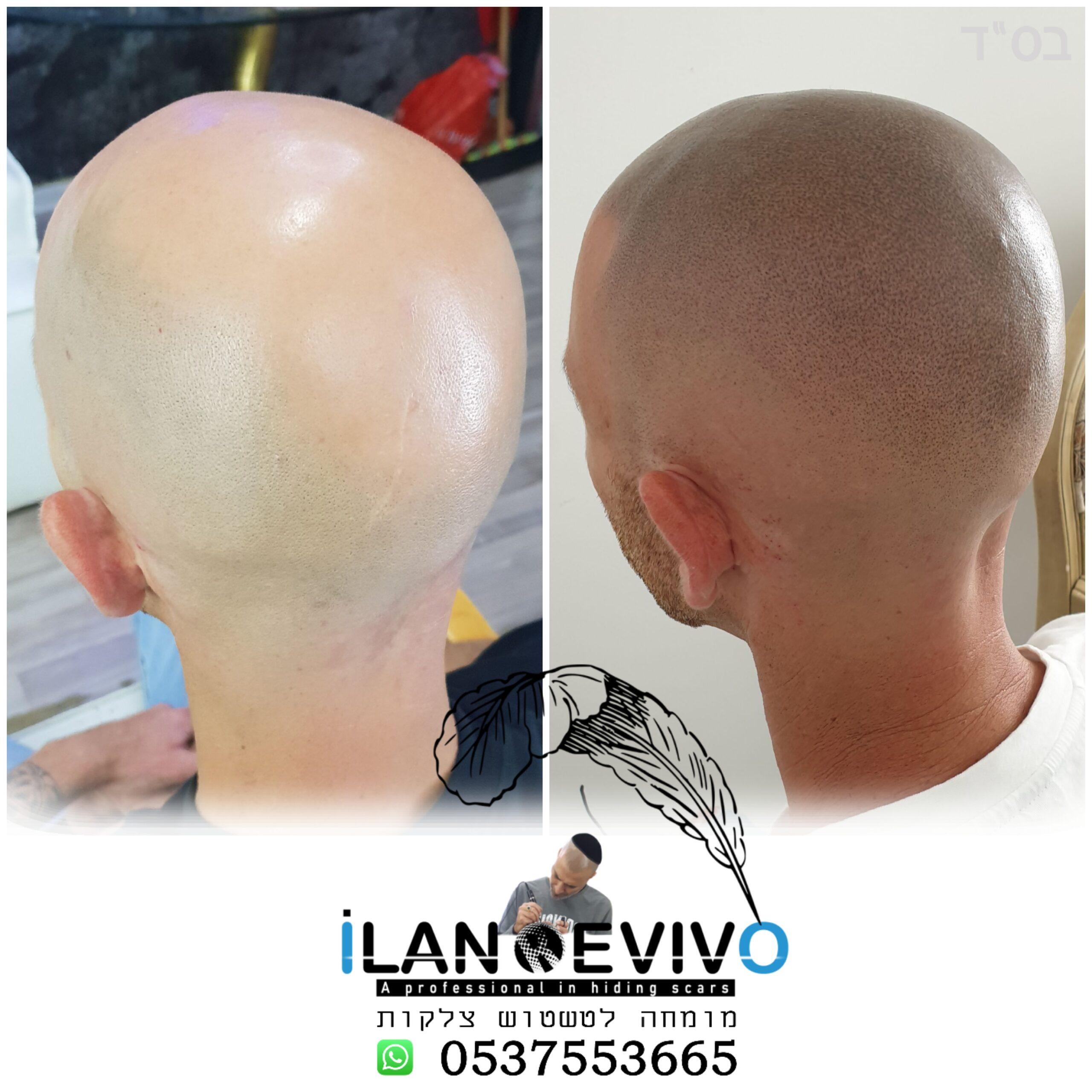 הדמיית שיער - טיפול מושלם לקרחת